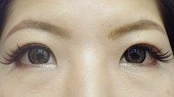 SBC横浜院 Dr藤巻のごゆるりブログ-A-001-NB3-a1m (2) (250x140).jpg