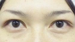 SBC横浜院 Dr藤巻のごゆるりブログ-A-003-NB3-a1m.jpg