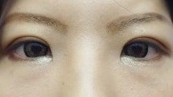 SBC横浜院 Dr藤巻のごゆるりブログ-A-001-NB3-a3d (250x141).jpg