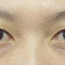【二重】上瞼が薄い奥…