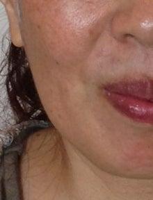 ★10歳若返る・美アンチエイジング★エイジレス美人の作り方-ほうれい線マッサージのビフォー写真