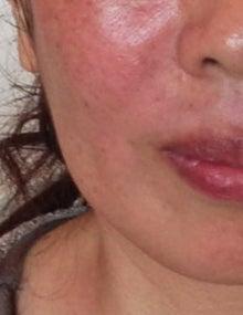 ★10歳若返る・美アンチエイジング★エイジレス美人の作り方-ほうれい線マッサージのアフター写真