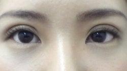 SBC横浜院 Dr藤巻のごゆるりブログ-A-013-NB3SC-a2w-f (250x140).jpg