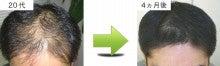 池袋から一つ離れた穴場の隠れ家大塚で、頭皮改善から発毛まで相談、解決! 頭皮専門サロンです。-20