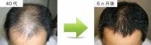 東京・池袋・大塚周辺の方は大塚駅徒歩1分  98%の発毛実績!「スーパースカルプ発毛センター大塚南口店」にお任せ下さい!