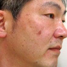 玉川田島クリニック < 私のブログ >-水光注射2週間後
