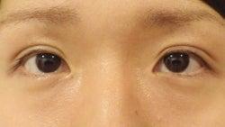 SBC横浜院 Dr藤巻のごゆるりブログ-A-020-NB2-a1w-f (250x141).jpg