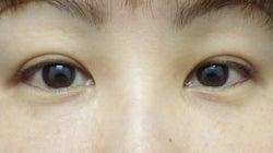 SBC横浜院 Dr藤巻のごゆるりブログ-A-019-FE-a1w-f (250x140).jpg