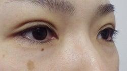 SBC横浜院 Dr藤巻のごゆるりブログ-A-025-2A3SC1-a-r (250x140).jpg