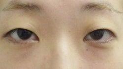SBC横浜院 Dr藤巻のごゆるりブログ-A-024-NB3SC1-b-f (250x141).jpg