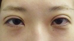SBC横浜院 Dr藤巻のごゆるりブログ-A-024-NB3SC1-a-f (250x140).jpg