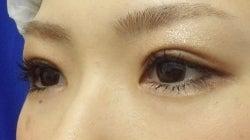 SBC横浜院 Dr藤巻のごゆるりブログ-A-025-2A3SC1-a1w-l (250x140).jpg