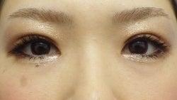 SBC横浜院 Dr藤巻のごゆるりブログ-A-025-2A3SC1-a1w-f (250x141).jpg