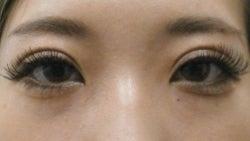 SBC横浜院 Dr藤巻のごゆるりブログ-A-024-NB3SC1-a2w-f (250x141).jpg