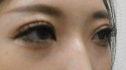 SBC横浜院 Dr藤巻のごゆるりブログ-A-024-NB3SC1-a2w-r (250x140).jpg