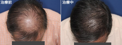 $☆女性美容皮膚科医・スタッフによるbeautyblog☆症例写真多数☆鹿児島市の美容皮膚科・永久脱毛、メディカルエステ-AGAには早めの治療がおすすめ。