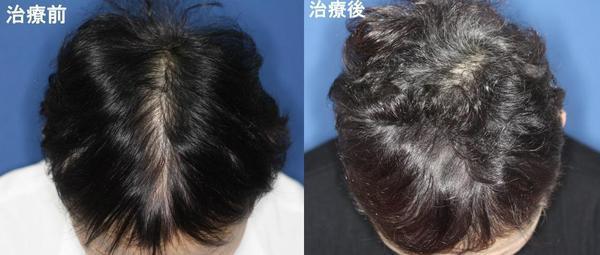 女性の薄毛治療は早めの治療が鍵
