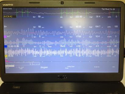 火の呼吸ヨーガ|クンダリーニヨガの火の呼吸トレーニング!-ニューロフィードバック