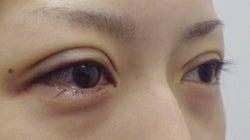 SBC横浜院 Dr藤巻のごゆるりブログ-A-031-2A3-a-r (250x140).jpg