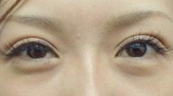 SBC横浜院 Dr藤巻のごゆるりブログ-A-031-2A3-a1w-f (250x140).jpg