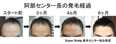 仙台98%発毛育毛AGA治療と同時に頭皮改善スーパースカルプ発毛センター仙台泉店