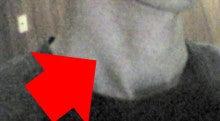 $腰痛・肩こりを整体&エクササイズで根本から改善!西新宿おくがわ整体院blog 新宿 西新宿 中野 渋谷-胸鎖乳突筋
