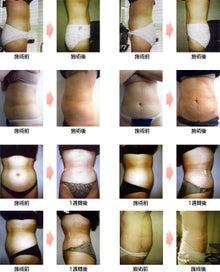アサミ美容外科スタッフのブログ