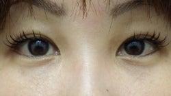 SBC横浜院 Dr藤巻のごゆるりブログ-A-019-FE-a5w-f (250x140).jpg