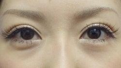 SBC横浜院 Dr藤巻のごゆるりブログ-A-031-2A3-a1m-f (250x140).jpg