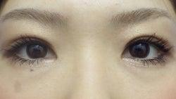 SBC横浜院 Dr藤巻のごゆるりブログ-A-025-2A3SC1-a1m-f (250x141).jpg