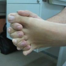 肩凝り、足の指の変形…