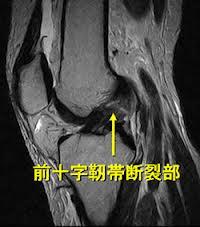 <札幌整体 碧い宙 臨床報告>-前十字靭帯断裂