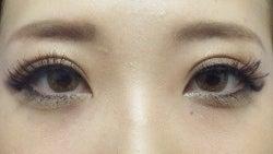 SBC横浜院 Dr藤巻のごゆるりブログ-A-024-NB3SC1-a6w-f (250x141).jpg