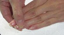 大阪市西区 本町・阿波座のネイルサロン&ネイルスクール ネイルケアと巻き爪ケアで美しい爪を育みます!!