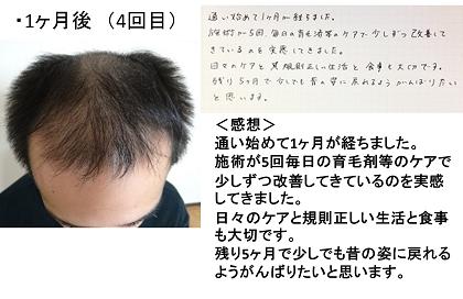 仙台98%発毛育毛AGA治療と頭皮ケアで薄毛解消!!