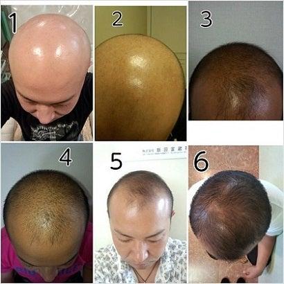 $仙台98%発毛育毛AGA治療と頭皮ケアで薄毛解消!!SS発毛センター仙台泉店