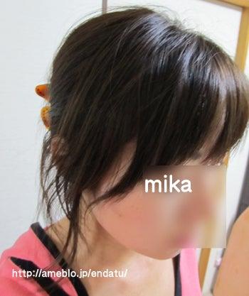 円形脱毛症のハゲ写真