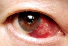 結膜下出血