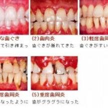 歯周病と全身疾患との…