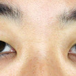切らない眼瞼下垂+α…