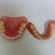 今日の症例「総義歯」