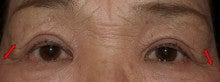 他院上眼瞼除皺術後 修正すべき部位