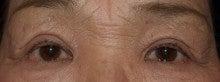 他院上眼瞼除皺術後 修正前
