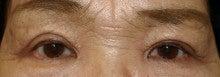他院上眼瞼除皺術後 修正後