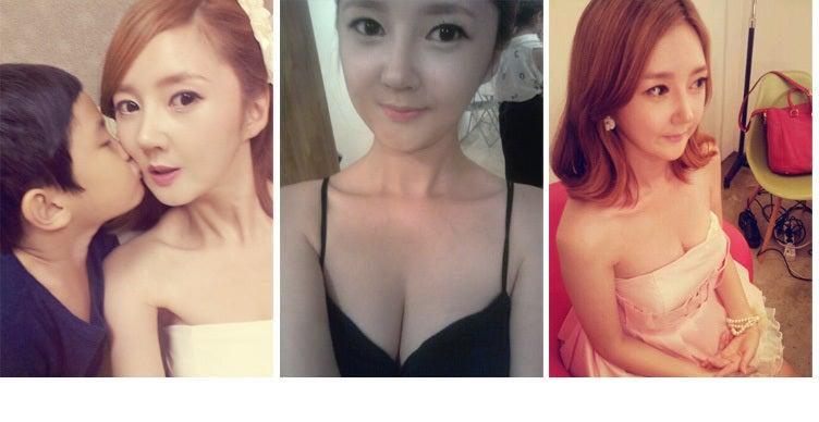 両顎手術,頬骨削り,韓国美容整形