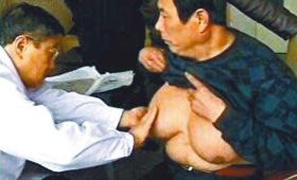 胸が異常に大きくなる病気「巨乳症(乳腺肥大症)」の原因や症状とは? [無断転載禁止]©2ch.net [226664307]->画像>169枚