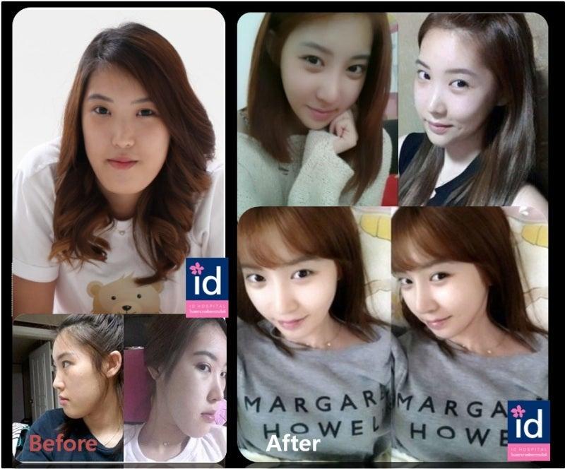 韓国整形、両顎手術、手術症例