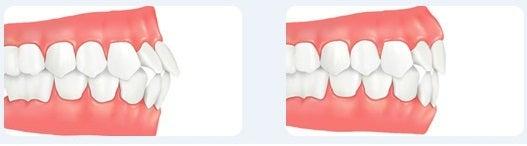 突き出し口、歯列矯正、両顎手術