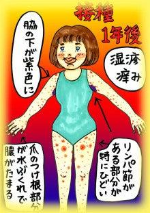 ワクチン副反応3