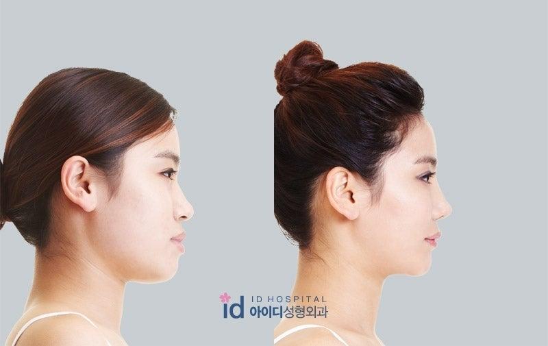 鼻整形、鼻先、韓国美容整形